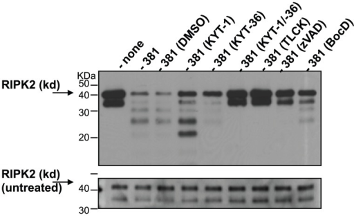 Cleavage of recombinant RIPK2 kinase by P. gingivalis in the absence of host cell proteins.P. gingivalis strain 381 was pretreated with 10 µM KYT-1, 10 µM KYT-36, 10 µM KYT-1 and 10 µM KYT-36, 1 mM TLCK, 100 µM zVAD-fmk, 100 µM BocD-fmk with or vehicle controls (HEPES (none), DMSO or acid water) for 45 min, then immediately co-cultured with 0.1 µg recombinant RIPK2 kinase for 1 h at 37°C. Reactions were stopped by the addition of SDS-PAGE loading dye and analyzed by Western blot analysis with an antibody to the N′-terminal kinase domain of RIPK2. Top panel: reaction with recombinant protein and P. gingivalis; bottom panel: 10% of reaction prior to incubation with P. gingivalis (untreated recombinant protein, i.e., gel loading control).