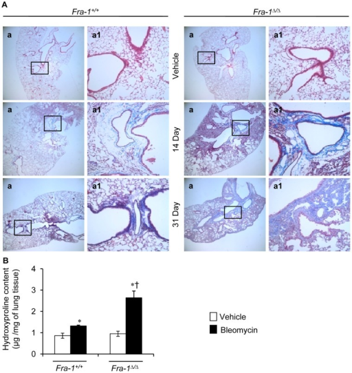 Fra-1Δ/Δ mice develop exaggerated pulmonary fibrosis after injury. A:Representative results of Masson's trichrome staining of the lung from the saline-treated mice (n = 3) or bleomycin treated mice for 14 (n = 3) and 31 (n = 4) days. B: Right lung was collected for biochemical analysis of bleomycin-induced pulmonary fibrosis as measured by hydroxyproline content at 31-day post-PBS and -bleomycin treatment (n = 5). ∗p<0.05, PBS vs bleomycin; †p<0,05, Fra-1Δ/Δ vs Fra-1+/+ mice. Images in a are shown at x4, whereas a1 represent boxed areas of a, shown at x20.