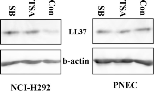 The LL37 protein expression induced by HDAC inhibitors in the NCI-H292 cells and the primary nasal epithelial cells. Whole cell lysates prepared from the NCI-H292 cells and PNEC 24 h after treatment with TSA(200 nM) and SB(4 mM). Data shown are from a single representative experiment. These experiments were repeated at least twice to confirm reproducibility.