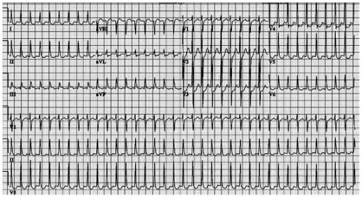 12-lead ECG on admission exhibiting supraventricular tachycardia with short RP interval.