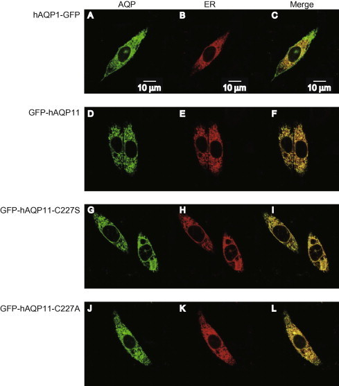 Subcellular localization of AQP11 mutants at Cys227. (A–L) Subcellular localizations of hAQP1-GFP (A–C), GFP-hAQP11 (D–F), GFP-hAQP11-C227S (G–I), and GFP-hAQP11-C227A (J–L) were evaluated by fluorescence microscopy. CHO cells were co-transfected with each AQP expression plasmid and a plasmid encoding an ER marker protein. Green (A, D, G, and J) and red (B, E, H, and K) colors indicate AQPs and ER marker proteins, respectively. The merged images are also shown (C, F, I, and L). The images were obtained 24 h after transfection. Scale bars = 10 μm. (For interpretation of the references to colour in this figure legend, the reader is referred to the web version of this article.)