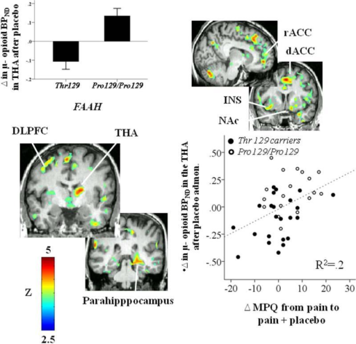 Figures represent voxel-by-voxel brain effects of FAAH Pro129Thr (Pro129/Pro129 > Thr 129 carriers) on Δ μ-opioid BPND after placebo administration during pain. Upper left: regional effects of FAAH Pro129Thr (Pro129/Pro129 > Thr 129 carriers) on Δ μ-opioid BPND in the thalamus (THA) after placebo administration during pain. Lower right: Pearson correlation between Δ μ-opioid BPND after placebo administration in the thalamus and Δ in pain ratings after placebo administration. Abbreviations: DLPFC: dorsolateral prefrontal cortex; dACC: dorsal anterior cingulate cortex; NAc: nucleus accumbens; THA: thalamus; MPQ: McGill Pain Questionnaire.