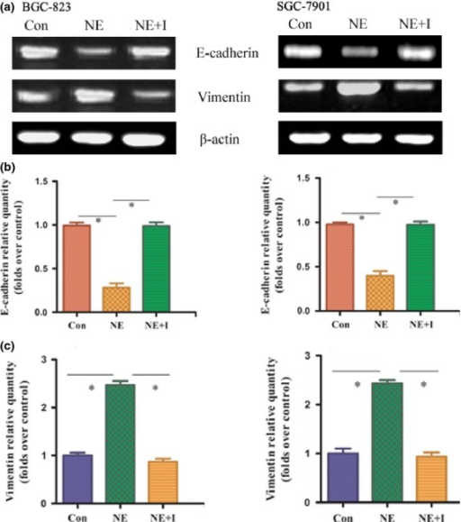 Norepinephrine (NE) decreased the expression of E-cadherin mRNA and increased the expression of vimentin mRNA in gastric adenocarcinoma cell lines, whereas the β2-adrenergic receptor antagonist ICI 118551 reversed this effect. (a) mRNA expressions of E-cadherin and vimentin in SGC-7901 and BGC-823 cells were determined by RT-PCR. (b, c) Quantification of mRNA by real-time quantitative PCR. Data from at least three independent experiments with duplicate determinations are expressed as means ± SEM. *P < 0.05 was considered statistically significant. Con, control; NE+I, NE + ICI 118551.