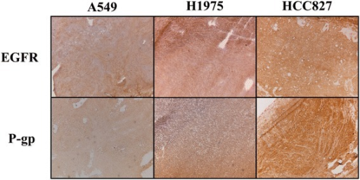 Immunohistochemical staining of NSCLC xenograft lines as used in PET studies. Images depicted at 5× magnification. Mutations: A549 (wild type), H1975 (L858R/T790M), and HCC827 (exon 19 deletion).