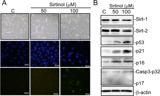 Inhibition of SIRT1/2 by sirtinol induces senescence in BJ fibroblasts.BJ fibroblasts were treated with 50 and 100 μM sirtinol for three days and subsequently (A) analysed for expression of SIRT1, SIRT2, p53, p21CIP1, p16INK4A and and full length (p32) and cleaved (p20) Caspase-3 levels by WB. β-actin was used as loading control (B) stained for SA-β-galactivity and γ-H2AX foci formation. Dapi was used to counterstain nuclei.
