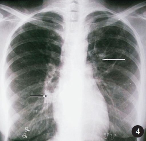 Chest radiograph (postero-anterior view) after three months of treatment revealing near complete resolution of mass like lesions (white arrows).