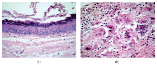 Microscopic findings: (a) the lining of the cyst is composed of an epithelium which is flattened and contains a granular layer of keratohyalin granules, Haematoxylin and Eosin, 100x, and (b) foci of rupture and keratin exposed to the adjacent capsule and reaction composed of macrophages and foreign body giant cells (for keratin exposed), Haematoxylin and Eosin, 400x.