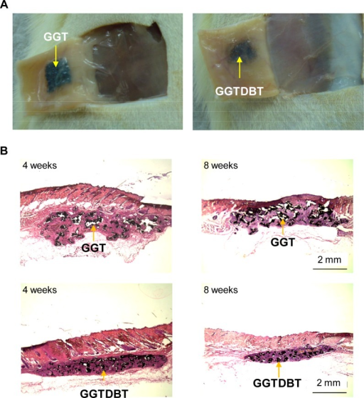 Biocompatibility of composites.(A) Macroscopic observations of tissue-covered implants, after GGT and GGTDBT composites were implanted subcutaneously at 8 weeks post-surgery. (B) Tissue reaction after GGT and GGTDBT composites were implanted for 4 and 8 weeks.