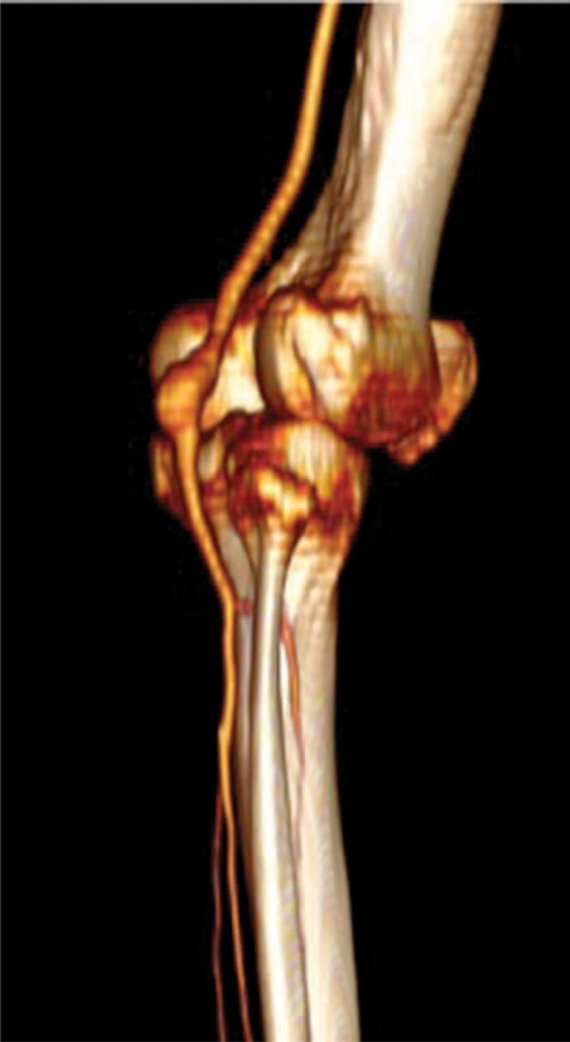Preoperative CTA angiography three-dimensional reconstruction showing popliteal artey aneurysm location. CTA = computed tomography angiography.