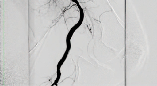 Intraoperative arteriogram. Lateral view with 90 joint flexion.