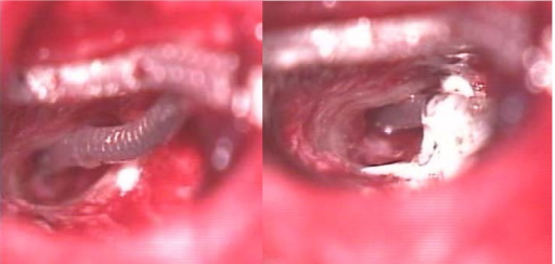 The fixation of the outer part of the electrode array and mastoid bone with glass ionomer cement