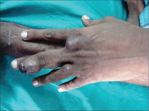 Multiple skin-colored well-defined nodules and tumors 2–6 cm on dorsal aspect of left hand and fingers