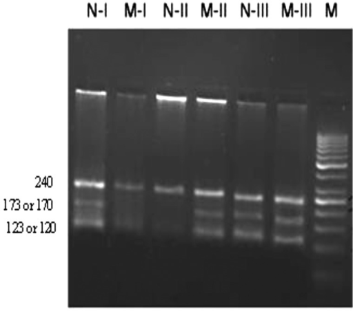 Detection of ΔF508 CFTR mutation in infertile men by using multiplex-ARMS-PCR. The amplification products of normal primers sets are shown here (N). M indicates the amplification products by IFM and DFM primers. The resulted amplified fragments for a normal and ΔF508 mutant are shown here. Sample I is a wild homozygote, sample II is a mutant homozygote (ΔF508) and sample III is a heterozygote (ΔF508). Fragment sizes are in the base pairs (bp). Marker; 50 bp DNA ladder. N-I; Normal primer sets for sample I, M-I; Mutant primer sets for sample I, N-II; Normal primer sets for sample II, M-II; Mutant primer sets for sample II, N-III; Normal primer sets for sample III, and M-III; Mutant primer sets for sample.