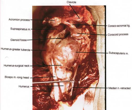 acromion; supraspinatus muscle; glenoid fossa; humerus; | open-i, Cephalic Vein