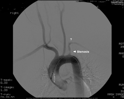Flush thoracic aortic angiogram shows a concentric proximal left subclavian artery stenosis with no antegrade flow in the vertebral artery.
