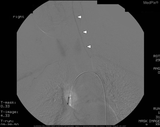 Delayed image from a thoracic aortic angiogram shows retrograde flow (arrowheads) in the left vertebral artery filling the distal subclavian artery.