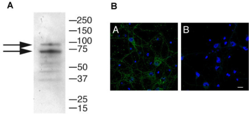 (A) Human brain soluble extracts (40 ug per lane) were separated on 4–20% SDS-PAGE gels and blotted using a goat polyclonal antibody to the C-terminus of IFT74 (Imgenex, anti-CMG1) at a final antibody concentration of 0.5 mg mL-1. Two major bands at ~90 kDa and ~70 kDa were identified which were blocked by pre-absorption of the antibody with the immunizing peptide (data not shown), indicating specificity. (B) A. Immunofluorescent staining of primary rat cortical neurons with the same antibody showed localization of IFT74 to vesicles in the cell body and along the neuronal processes. B. Secondary antibody alone gave no signal using consistent gain and offset settings.