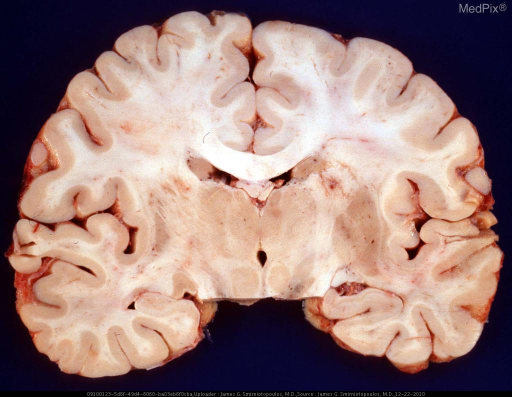 The right basal ganglia shows loss of the normal gray-matter color and blurring of the demarcation between the lenticular nucleus and internal and external capsule.