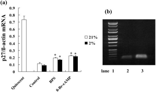 Effects of BPS and 8-Br-cAMPon p27kip1 mRNA expression during hypoxia. Cultured HPASMC were exposed to 21% or 2% oxygen concentrations with or without 10 μM of BPS or 1 mM 8-Br-cAMP for indicated periods. Expression of p27kip1 mRNA was measured using Real-time RT-PCR using LightCycler™. (a) BPS suppressed p27kip1 mRNA reduction under both normoxic and hypoxic conditions. Expression of p27kip1 mRNA between normoxic and hypoxic conditions did not significantly change. Graph shows ratio of p27kip1 to β-actin mRNA expression. Open and solid bars, 21% and 2% oxygen, respectively. Data are expressed as means ± SE (n = 6). *P < 0.05 versus control. (b) Agarose gel electrophoresis with EB staining revealed single amplification of predicted PCR products (lane 1, DNA molecular weight markers; lane 2, p27kip1; 109 bp; lane 3, β-actin 144 bp).
