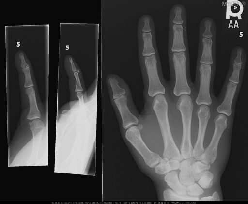 Intra-articular fracture at the base of the distal phalanx of the right 5th digit with dorsal displacement of avulsed fragment.