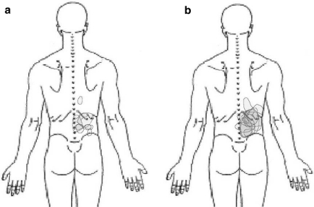 Shadings of perceived area of pain associated with the injection of isotonic (a) or hypertonic (b) saline into the right lower back