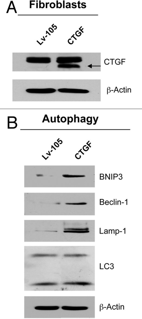 Figure 1. CTGF overexpression induces an autophagy/mitophagy program in fibroblasts. (A) Fibroblasts were stably-transfected with a CTGF or Lv-105 empty vector plasmid, using a lentiviral vector approach. Total proteins were isolated from transfected fibroblasts, and analyzed by immunoblotting to confirm CTGF expression. (B) Immunoblot analysis shows that CTGF overexpression induces the activation of autophagy/mitophagy in fibroblasts, as judged by increased expression levels of BNIP3, Beclin-1, Lamp-1 and LC3, as compared with control cells. The expression of β-actin was assessed for equal protein loading.
