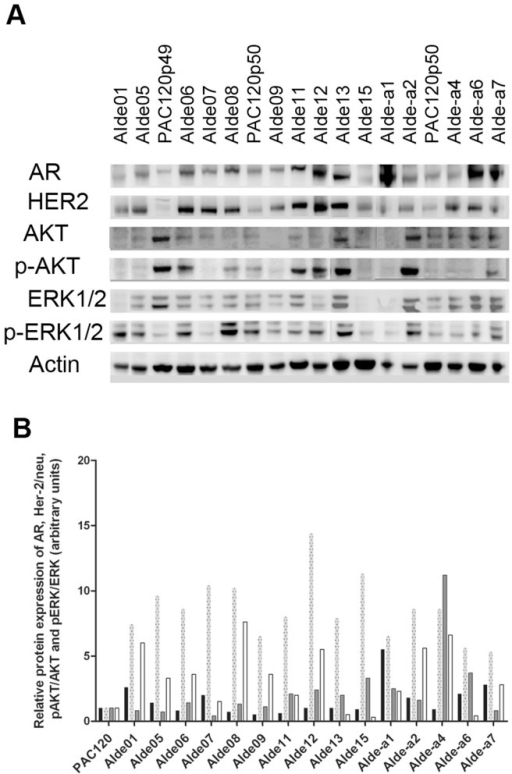 Protein expression of the androgen receptor (AR), human epidermal growth factor receptor 2 (Her-2/neu) and ratios of pAKT/AKT and pERK/ERK detected using A) Western blotting analysis in androgen-independent (AI) variants.Actin was used as a control for loading protein. B) Histograms representing the quantification of AR, Her-2/neu and ratios of pAKT/AKT and pERK/ERK normalized to actin and mean of PAC120 coming from various passages (expressed arbitrary units). AR (black bars) was expressed in PAC120 and all AI variants and Her-2/neu (dotted grey bars) was overexpressed in all AI variants. Either p-AKT/AKT (grey bars with full line) or pERK/ERK (white bars) were activated in AI variants. Abbreviations used to identify variants are explained in the legend of Figure 2.