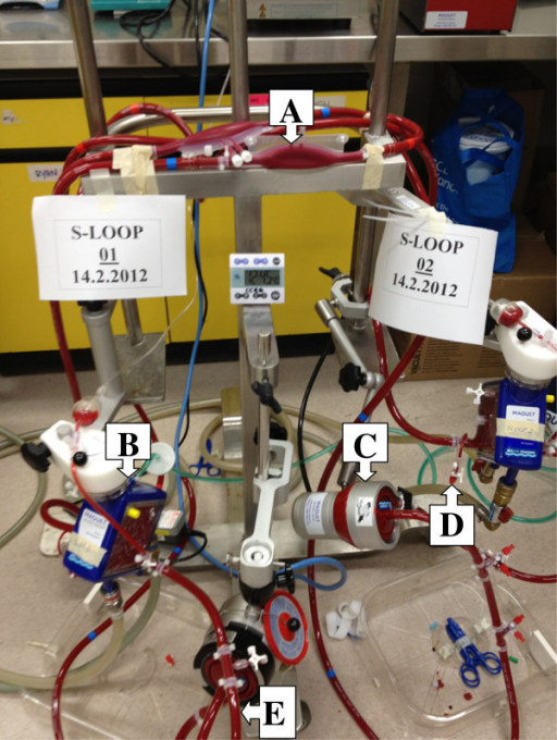 Ex vivo ECMO circuit model. A -reservoir bladder, B- oxygenator, C- centrifugal pump, D-drug injection and sampling port, E- circuit tubing.