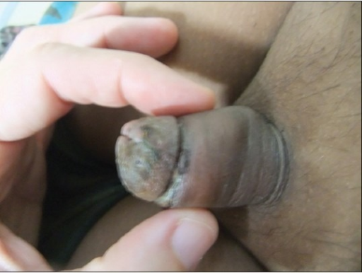 Post-operative aspect of the penis, dorsal view