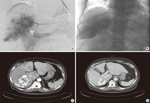 Transcatheter arterial chemoembolization (TACE). (A) The hepatic mass was stained in the celiac angiogram. An emulsion of 10 mL of lipiodol and 50 mg of doxorubicin was injected. (B) The tumor was well lipiodolized, as observed by post-TACE imaging. Abdominal computed tomography scans taken (C) 2 weeks and (D) 7 months after TACE revealed partial lipiodol uptake and necrotic changes in the center of the liver mass. The size of the mass (white arrow) had decreased to 8.3 cm.