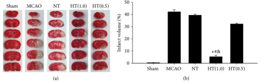 AIH reduces brain infarct volume in the ischemia/reperfusion rat model. TTC staining was used to measure the brain infarct volume 24 h after reperfusion. (a) Representative infarct volume stained with TTC in each group. (b) Average infarct volume in rats treated with 5′-AMP coupled with low Ta. All values are mean ± SEM. *P < 0.05 compared to the MCAO group, #P < 0.05 compared to the NT group, and &P < 0.05 compared to the HT(0.5) group.