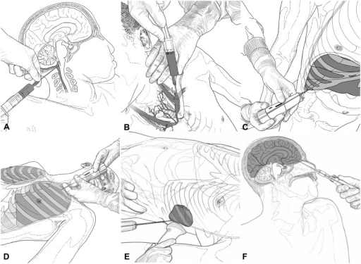 Procedures for the collection of cerebrospinal fluid (A), peripheral blood (B), liver (C), lung (D), spleen (E), and the central nervous system biopsy (F) (designed by Xabier Sagasta).