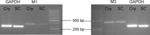 RT-PCR detection of mRNA expression of muscarinic M1 and M3 acetylcholine receptor subunits in isolated rat colonic crypts. The agarose gel shows bands of cDNA fragments amplified using specific primers for M1 (373 bp) and M3 receptors (434 bp). cDNA from spinal cord was used as positive control. The efficiency of RNA isolation and cDNA synthesis was verified by using GAPDH-specific primers (303 bp). Representative results from three independent experiments. Cry, colonic crypts; SC, spinal cord; RT-PCR, reverse transcription polymerase chain reaction; GAPDH, glyceraldehyde-3-phosphate dehydrogenase.