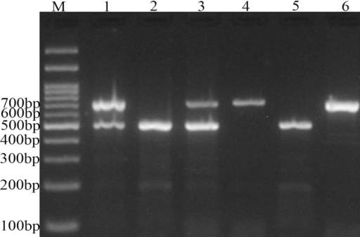 Photograph of DNA electophoresis for detection of APOBEC3 I/D variant. M: DNA marker; lanes 1, and 3: I/D; lane 2, and  5: D/D; lanes 4 and 6, I/I genotypes