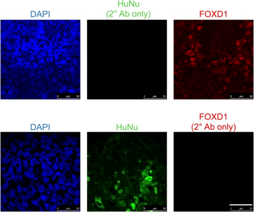 Staining controls relevant to Figure 9C.Samples were fixed and stained as in Figure 9C, except anti-HuNu antibody was excluded (top row) or anti-FOXD1 antibody was excluded (bottom row). The same secondary antibodies were used to demonstrate that the HuNu and FOXD1 stains are dependent on primary antibodies and are not due to non-specific binding of secondary antibodies.DOI:http://dx.doi.org/10.7554/eLife.08413.024