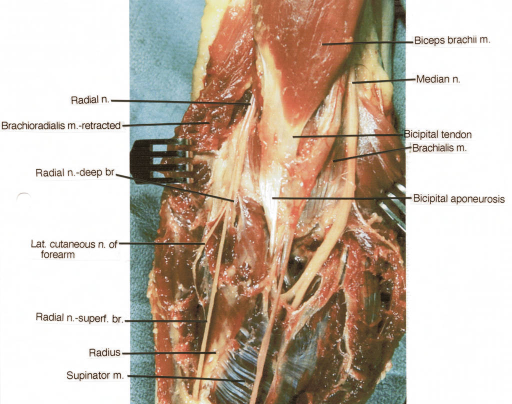 biceps brachii muscle; median nerve; bicipital tendon; | Open-i