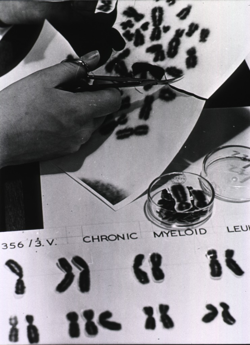 <p>A photograph of chromosomes is being cut up and the pairs sorted and arranged for comparison in a search for abnormalities that may provide a link to the development of leukemia.</p>