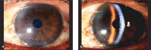 Corneal edema and severe Descemet's folds in a patient after 48 hours