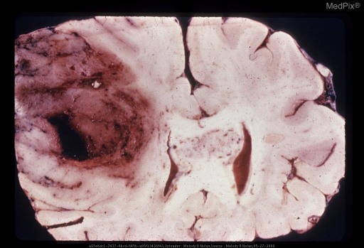 Frontal Section of Brain through Genu of Callosum:  A large hemispheric glioblastoma has extended to involve the corpus callousum. At this level, there appear to be two tumors but a connection was demonstrated in sections more anteriorly.