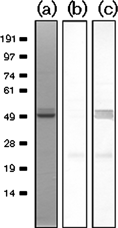 The lipoprotein ComL directly interacts with PilQ. Solid-phase overlay interaction study between ComL18–267 and PilQ25–354 on the blot and overlay with ComL18–267, and detection with ComL antibody. (a) Coomassie blue staining of PilQ25–354. (b) Negative control with PilQ25–354 protein on the membrane probed with ComL antibody alone. (c) PilQ25–354 protein on the membrane, probed with ComL antibody after an overlay of ComL18–267. A stronger staining for PilQ25–354 and its degradation product is seen when an overlay of ComL18–267 is added before detection with antibody, indicating an interaction between PilQ25–354 and ComL18–267.