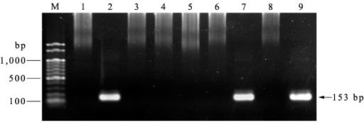 Nested PCR screening of blood samples collected for Plasmodium knowlesi Lanes M = Molecular weight marker (100 bp ladder -New England Biolabs); lane 1 = negaitve control, lane 2 = positive control; lane 3-6 and 8 = negative blood samples; lane 7 and 9 = positive blood samples (M2/20 and M2/51 respectively).