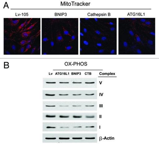 Figure 8. BNIP3-, CTSB- and ATG16L1- fibroblasts all show mitochondrial dysfunction: OXPHOS and MitoTracker. (A) We evaluated the functional consequences of autophagic genes expression on mitochondrial activity in fibroblasts, by determining the levels of mitochondrial enzymes associated with the respiratory chain. Note that a strong reduction in key components of complex I, III, and IV was observed, for all the genes examined. Furthermore, in CTSB fibroblasts there is a downregulation of the expression of complex II. Lv- represents fibroblasts transduced with the vector alone control, namely Lv-105 (puro). (B) Note that all three types of autophagic fibroblasts (BNIP3, CTSB, and ATG16L1) show dramatic reductions in MitoTracker staining, indicative of a loss of mitochondrial membrane potential.