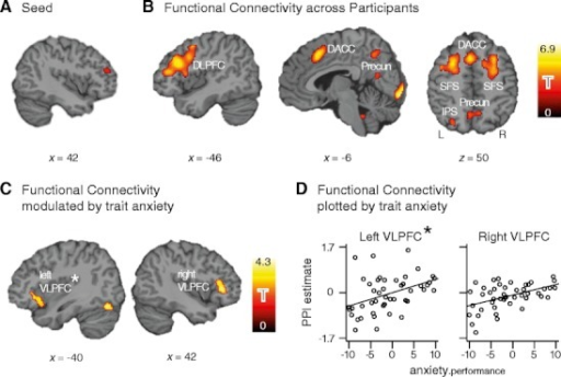 Functional connectivity of the right DLPFC in the working memory manipulation task. The x- and z-coordinates refer to the Montreal Neurological Institute template brain included in the SPM5 software package, and the statistical parametric maps in panels B and C are shown at a voxel-level threshold of p < .005. (a) Seed region in right DLPFC. (b) Functional connectivity of the right DLPFC across participants, clusters show enhanced coupling with right DLPFC for manipulation > maintenance. (c) Positive association of anxiety and functional connectivity, controlling for (nonsignificant) variation in performance. The clusters show stronger PPI with DLPFC in high- as compared to low-anxious participants. (d) Individual strength of PPI with DLPFC, plotted against anxiety.performance—that is, the residual of trait anxiety from regression on behavioral performance. The PPI estimates derive from the contrast value of the interaction regressor in the PPI model. The scale of the ordinate given in the plot to the left is valid for both plots. DACC, dorsal anterior cingulate cortex; DLPFC, dorsolateral prefrontal cortex; IPS, intraparietal sulcus; Precun, precuneus; SFS, superior frontal sulcus; VLPFC, ventrolateral prefrontal cortex; L, left; R, right. *Note that seed connectivity with left VLPFC was significantly modulated by anxiety only in the regression model including intelligence