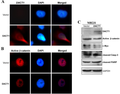 DACT1 suppressed β-catenin activity and upregulated apoptotic markers. (A, B) Subcellular location of active β-catenin in vector- and DACT1-expressing MB231 cells by immunostaining. (C) Western blot analysis of β-catenin signaling components and apoptotic markers.