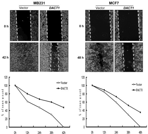 Wound-healing assay for cell motility of vector- or DACT1-transfected MB231 and MCF7 cells. Upper: Representative images of wound sealing at 0 hours and 42 or 48 hours after wound scratch. Lower: The percentage of wound sealing compared with that of controls at each time point as indicated.
