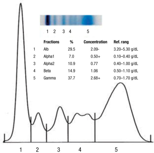 the result of serum protein electrophoresis showing ele | open-i, Skeleton