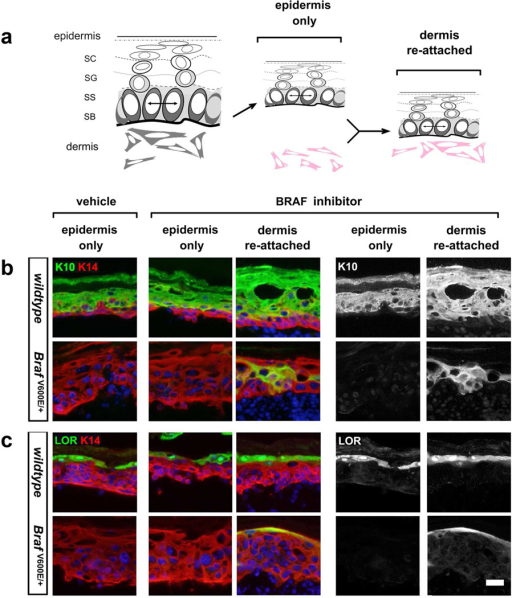 Reversion of BrafV600E-explants is not cell autonomous, requiring a dermal signal(a) Schematic of preparation of explants, epidermis-only vs. epidermis with dermis reattached. (b) Spinous K10 expression in epidermis-only explants vs. epidermis re-attached to dermis from wildtype and K14-cre; BrafV600E E17.5 embryos treated with BRAF inhibitor, PLX4720. Right panels demonstrate single channel of K10 expression. (c) Granular LOR expression was examined in wildtype and BrafV600E epidermis, demonstrating the requirement for dermal reattachment for proper re-activation of LOR protein expression. Right panels demonstrate single channel of LOR expression. Scale bar, 20 µm.