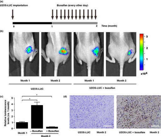 Busulfan inhibited osteosarcoma growth in vivo in a mouse model. (a) In order to evaluate the therapeutic effect of busulfan on osteosarcoma in vivo, we generated a mouse model by orthotopically injecting luciferase-transfected U2OS (U2OS-LUC) into the tibia of nude mice. One month later, busulfan was i.v. injected into the mice every other day for another month. (b,c) Tumor growth was monitored by bioluminescence imaging. We found a continuous growth of the implanted tumor in the control mice, but the tumor growth was significantly inhibited in the mice that received busulfan, shown by representative images (b), and by quantification (c). (d) TUNEL assay further confirmed that busulfan induced significant apoptosis of osteosarcoma cells in vivo. Scale bar = 40 μm.