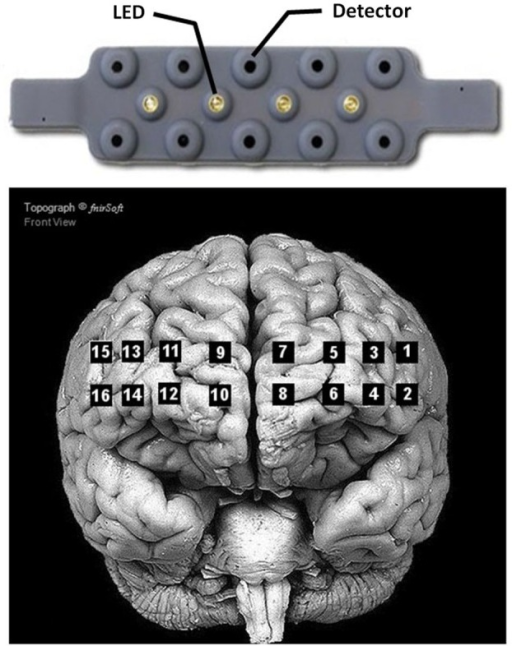Arrangement of the 4 LED sources and 10 detectors of the Biopac® fNIR100 device (top), and location of the corresponding optodes on the cortex (bottom). Adapted from fnirSoft® software for NIRS data analyses.