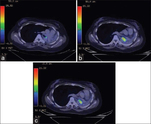 (a-c) An fluorine-18 fluorodeoxyglucose positron emission tomography/ computed tomography revealed a solitary metabolically active endobronchial lesion measuring 3.5 cm × 1.8 cm (SUVmax-9.3) in the left main bronchus extending into the left lower bronchus causing complete obstruction and collapse of the entire left lung
